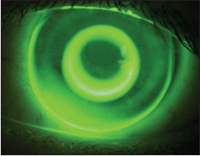 Figure 10. Bulls-eye fluorescein pattern in keratoconus (Global OK design).
