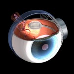 Picture showing the position of the Bionic receiver implanted on the retina