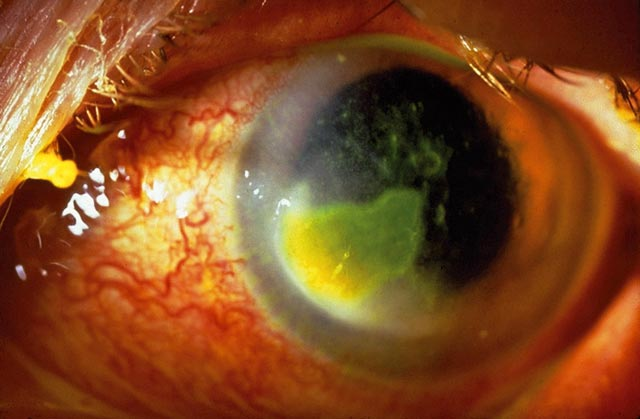 Picture above shows a contact lens induced corneal ulcer