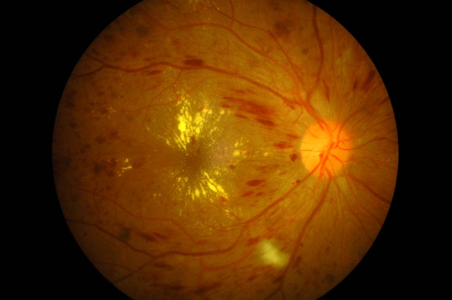 Picture of eye with Diabetic Retinopathy
