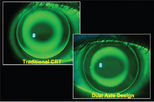 Figure 4. Fluorescein pattern of a standard spherical Paragon CRT lens and of a Paragon CRT Dual Axis lens on a toric cornea. - Courtesy of Patrick J Caroline, FAAO