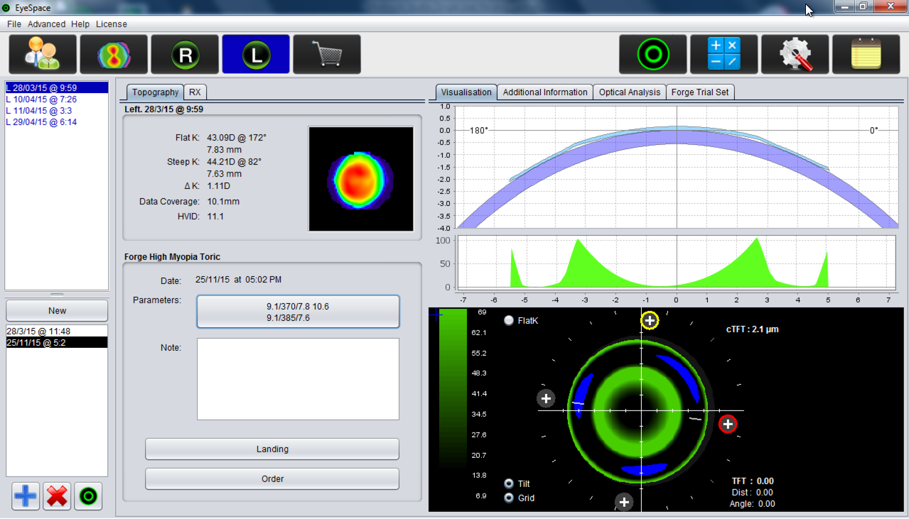 Screenshot showing EyeSpace contact lens design software with a Forge orthokeratology lens design