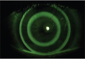 Figure 3. OK Multifocal (Contex). Photo courtesy Patrick J Caroline, FAAO