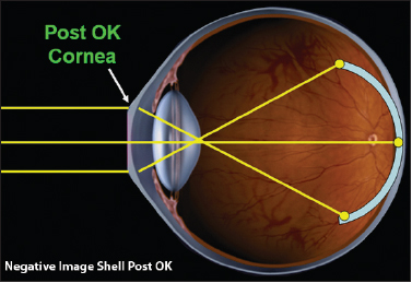 Figure 1. Negative image shell post-orthokeratology treatment.