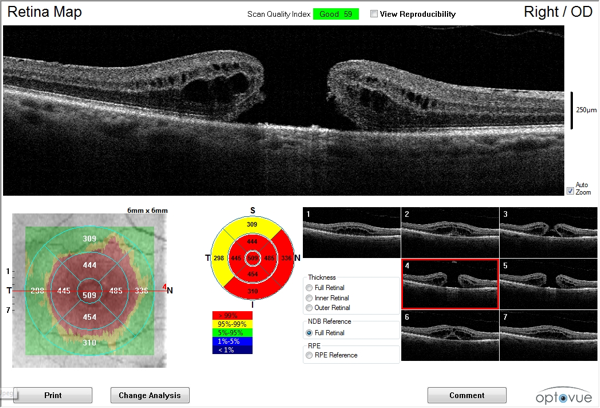 OCT image showing a macular hole