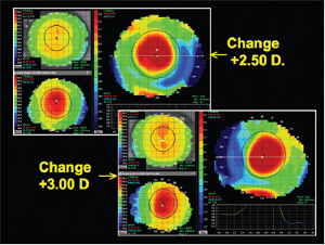 Figure 8. Corneal topography of hyperopic molding. Photo courtesy  Patrick J Caroline, FAAO