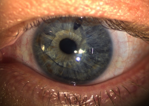 Scleral contact lens fitted over an eye with a iris claw intra ocular lens