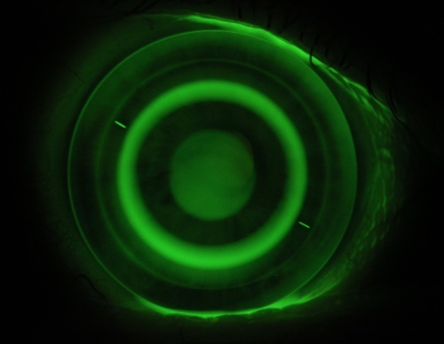 Fluorescein image of a toric hyperopic orthokeratology lens fitted on eye