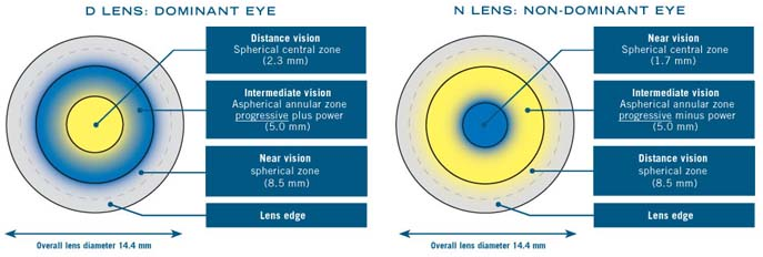 Diagram showing the optics of Biofinty Multifocal soft contact lenses