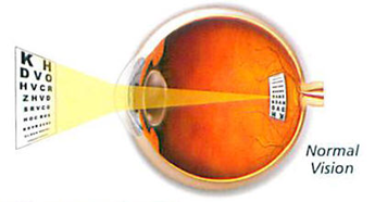 Due to the optics of the eye, the focused image on the retina of the eye is inverted