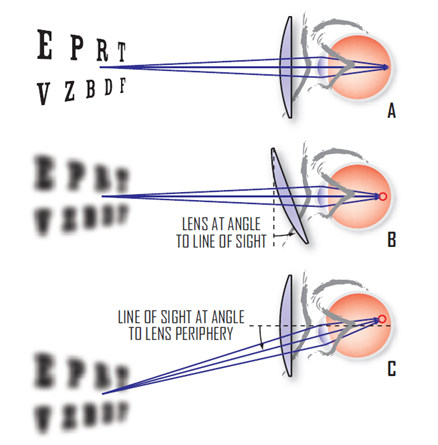 Residual low-order aberrations occur in traditional spectacle lenses due to oblique astigmatism