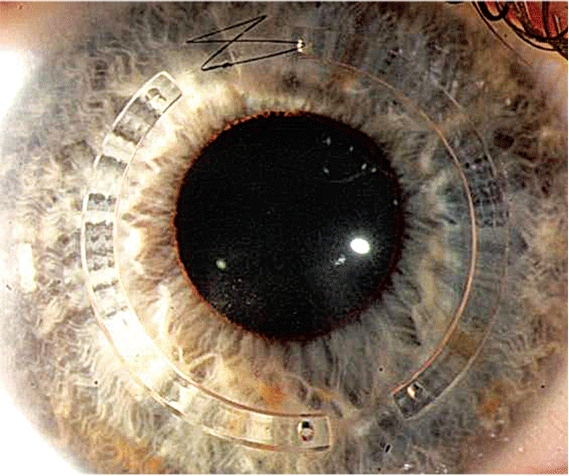 Intacs corneal ring segments poisioned to improve corneal astigmatism and apical decentration