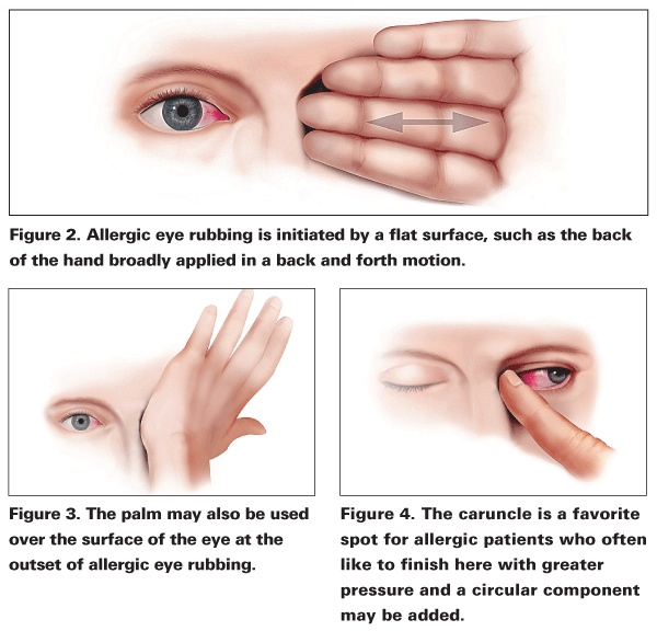 Image showing different methods of rubbing your eyes