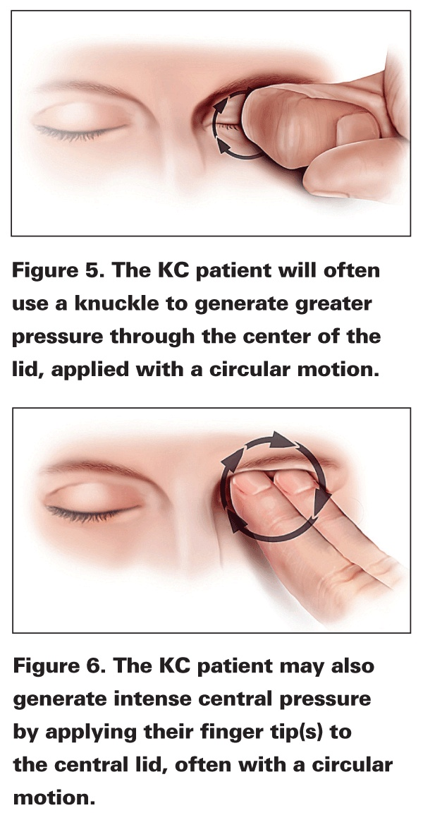Keratoconus patient will often use a knuckle to rub the eye