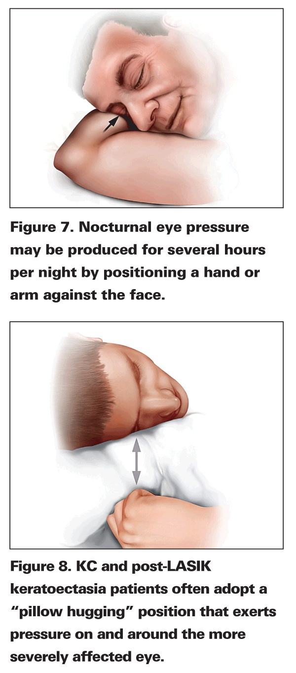 Sleeping incorrectly can increase the nocturnal pressure of the eye