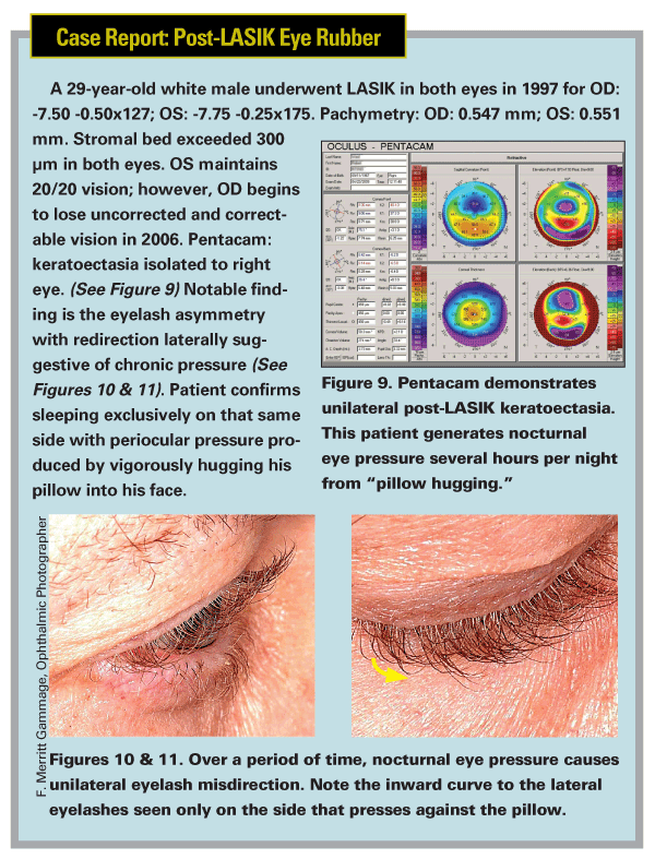Case Report on a Post-LASIK eye Rubber
