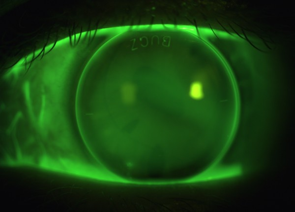Sodium Fluorescein image of EyeSpace Bespoke Bitoric gas permeable lens fitted on the left eye.
