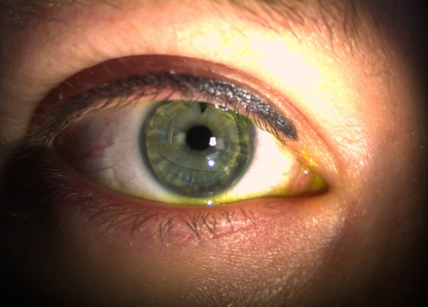 EyeSpace Bespoke Bitoric GP lens fitted over an iris claw anterior intraocular lens
