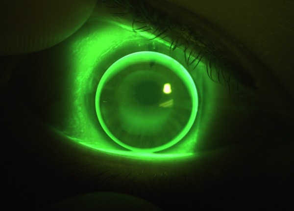Sodium Fluorescein image of EyeSpace Bespoke Bitoric gas permeable lens fitted on the right eye.