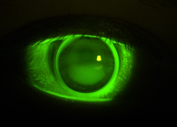 Sodium Fluorescein image of EyeSpace Bespoke Bitoric GP Lens on Right Eye