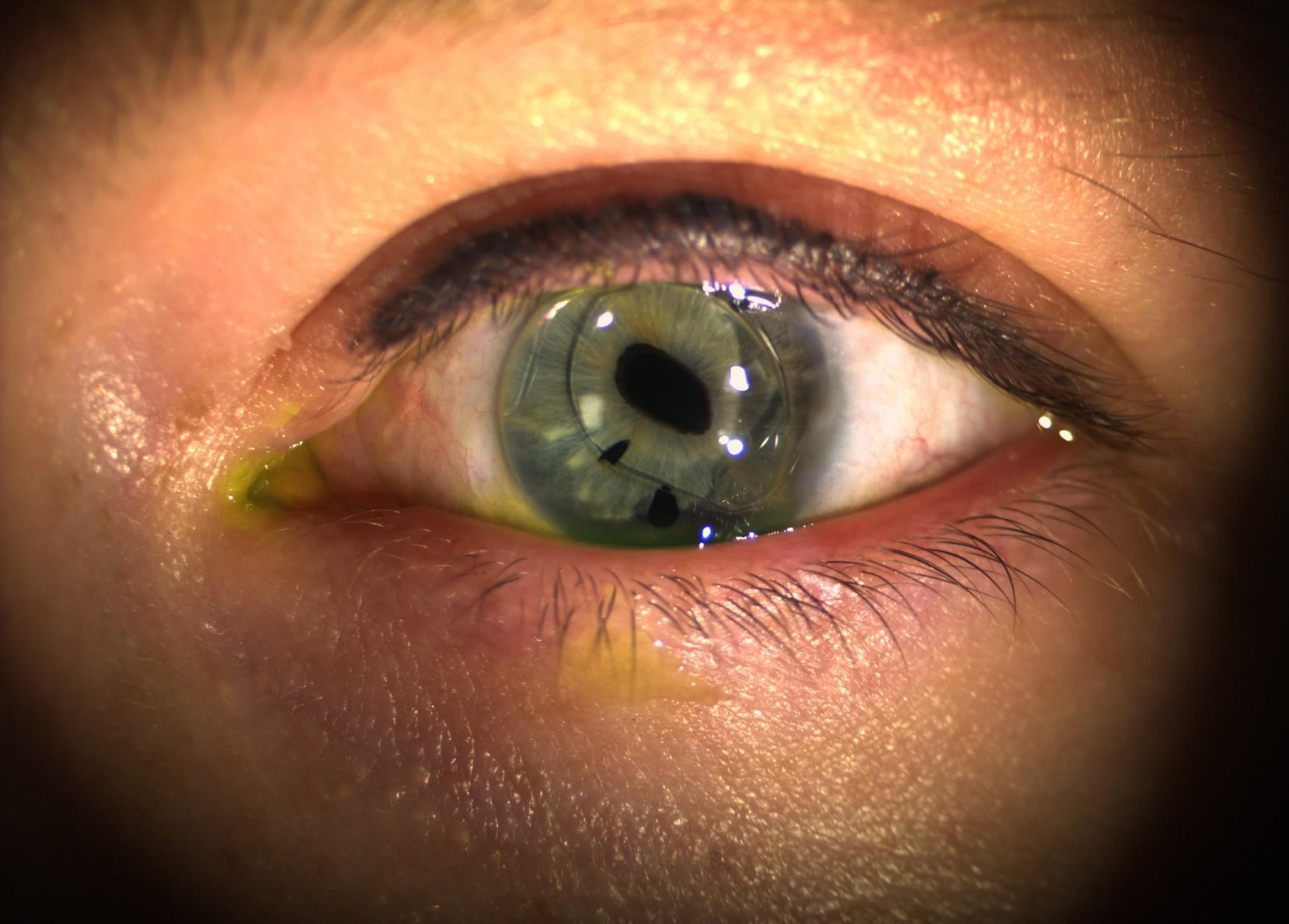 EyeSpace Bespoke Bitoric lens fitted over anterior intraocular lens on the left eye.