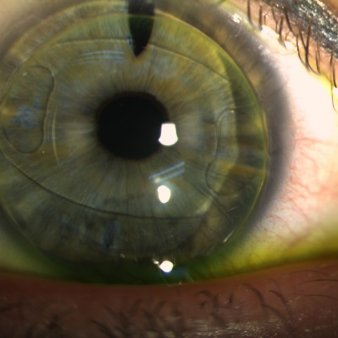 EyeSpace Bespoke Bitoric lens fitted over iris claw anterior intraocular lens on the right eye.
